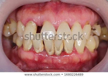 gum disease inflammation bacteria stock photo © tefi