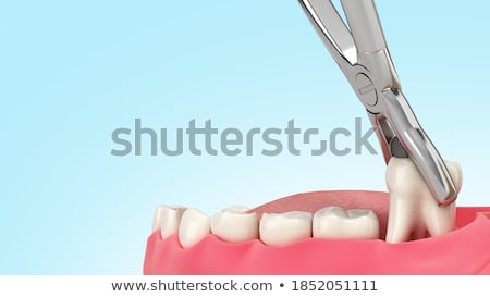 3D médicos ilustración mandíbula hueso Foto stock © maya2008