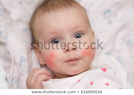 baby · twarz · czerwony · policzek · oka · tle - zdjęcia stock © Paha_L