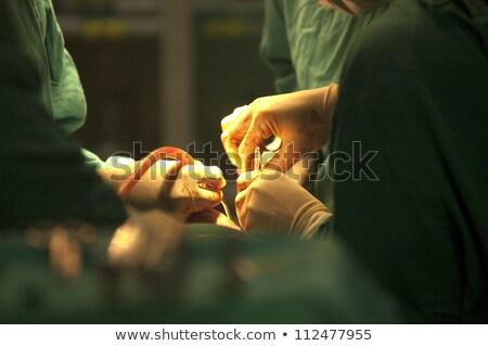 Close up of operation Stock photo © wavebreak_media