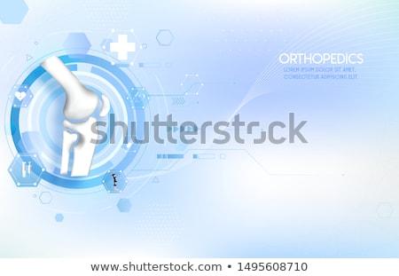 médicos · ortopédico · médico · examinar · ancianos - foto stock © adrenalina