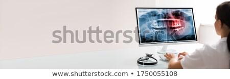 Fogorvos számítógéphasználat technológia fogászati szoftver fogak Stock fotó © AndreyPopov