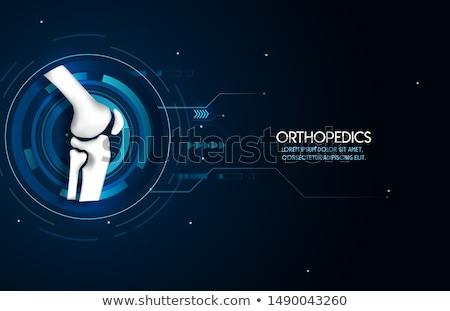 knee joint abstract treatment stock photo © tefi