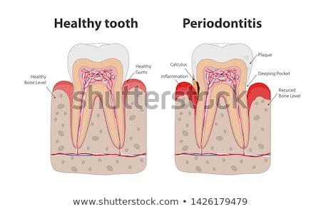 periodontitis gum disease poster stock photo © tefi