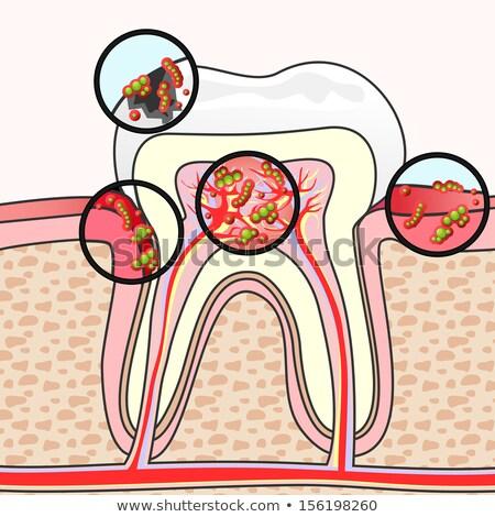 зубов иллюстрация исследование стоматолога ухода стоматологических Сток-фото © adrenalina