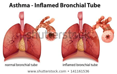 Diagram showing lungs with disease Stock photo © bluering