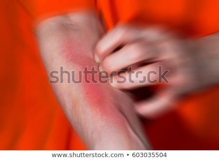 Have a itching Stock photo © eddows_arunothai