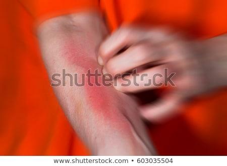 アジア · 女性 · 赤 · 着用 · 腕 · グレー - ストックフォト © eddows_arunothai