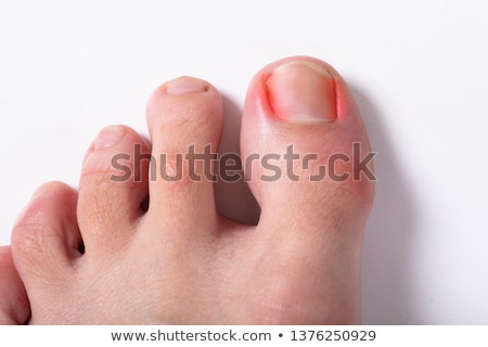 An Elevated View Of Sore Toe Nail On Floor Stock photo © AndreyPopov