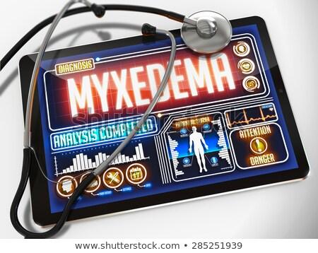Myxedema on the Display of Medical Tablet. Stock photo © tashatuvango