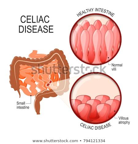 ziekte · anatomie · medische · normaal · beschadigd · klein - stockfoto © lightsource