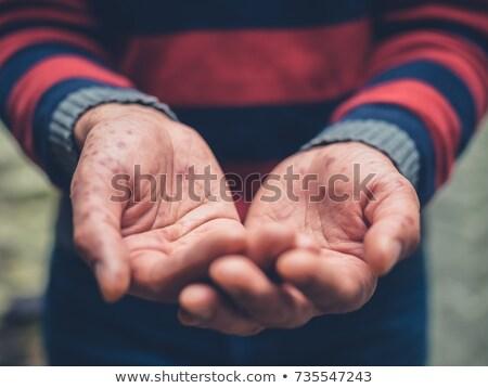 Pacjenta młodych zestaw młody człowiek ceny sukces Zdjęcia stock © toyotoyo