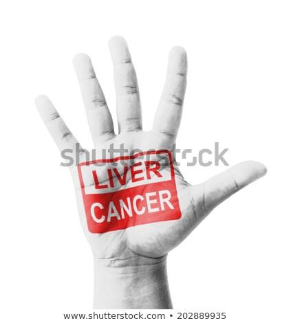Stop Hepatitis   Concept on Open Hand. Stock photo © tashatuvango