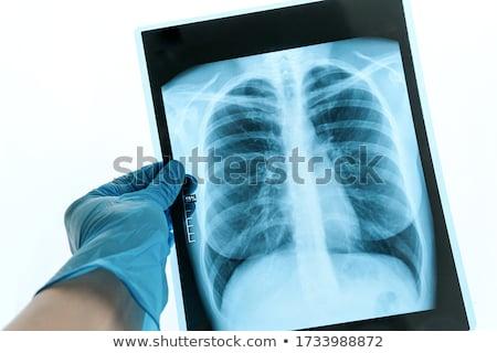 genç · radyolog · bakıyor · xray · görüntü · çekici · kadın - stok fotoğraf © nobilior
