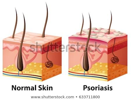 Сток-фото: человека · кожи · диаграмма · нормальный · медицинской · здоровья