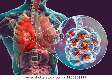 Pertussis. Medical Concept. Stock photo © tashatuvango