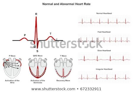 Rápido latido del corazón ilustración rápido corazón pulsante Foto stock © alexaldo