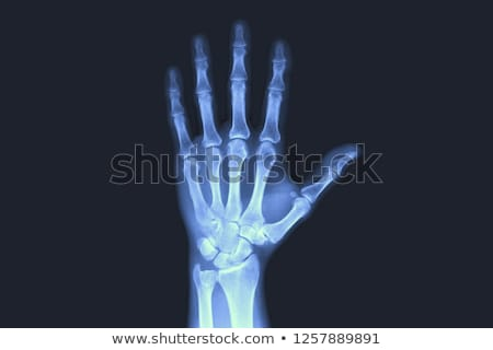 X-ray of hands Stock photo © smuki