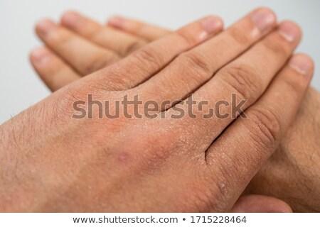 Stock photo: extreme skin exfoliation