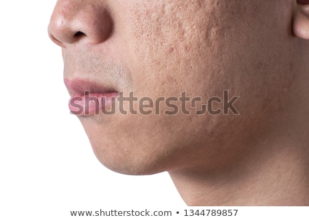 man with skin problem stock photo © bluering