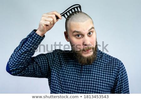 Bald Head Hair Growth Stock photo © Lightsource