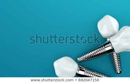 歯科 インプラント 美しい 水色 技術 健康 ストックフォト © Tefi