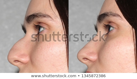 before and after rhinoplasty Stock photo © adrenalina