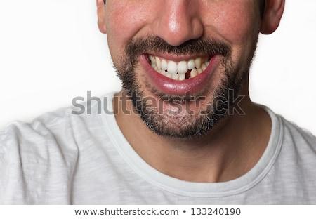 Man vermist tanden mannelijke patiënt medische Stockfoto © AndreyPopov