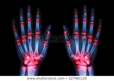 Piros izületek kék digitális csontváz test Stock fotó © wavebreak_media