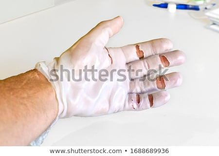 Stock photo: hand physiotherapy to recover a  finger