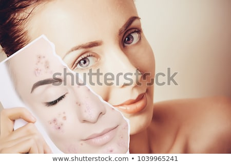 Pimple , spot on beauty woman face stock photo © stryjek