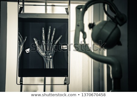 Radioloog Xray afbeelding menselijke wervelkolom handen Stockfoto © stokkete