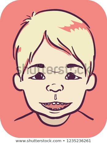 Kid Boy Symptom Angelmans Syndrome Face Stock photo © lenm