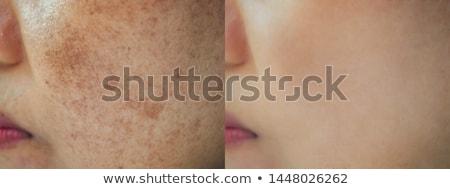 女性 皮膚 ホワイトニング 若い女性 グレー 顔 ストックフォト © AndreyPopov
