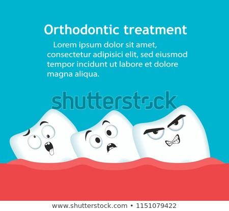 Dentes ortodôntico dental sorrir médico Foto stock © Kurhan