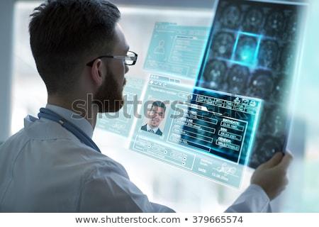 Medical Worker Examining Brain Xray on Computer Stock photo © robuart