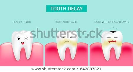 dente · goma · bactérias · médico · dental · ilustração - foto stock © tefi