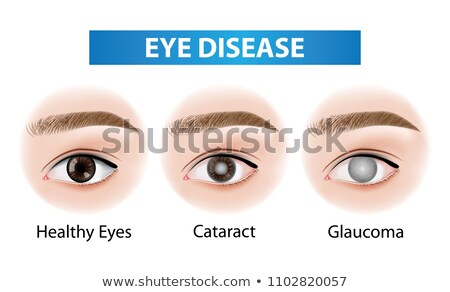 Stock photo: Normal eye