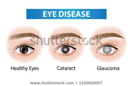 normal eye stock photo © tefi