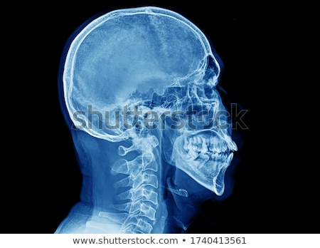 Skeletons having headaches Stock photo © wavebreak_media