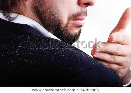 Dandruff issue on man's sholder Stock photo © zurijeta