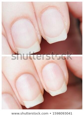 Nő kezek körmök kezelés fehér törölköző Stock fotó © lunamarina