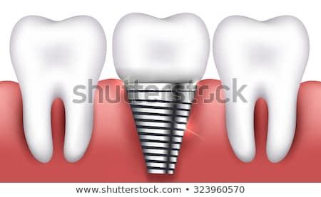 стоматологических имплантат нормальный зубов красивой ярко Сток-фото © Tefi