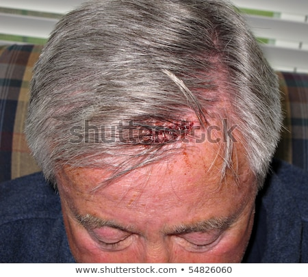 head wound - staples Stock photo © dgilder
