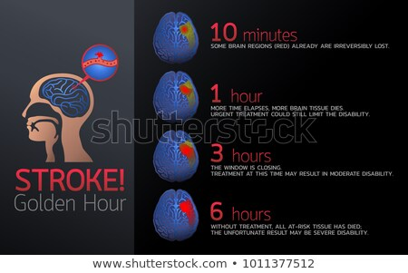 Stroke in the brain artery Stock photo © Tefi