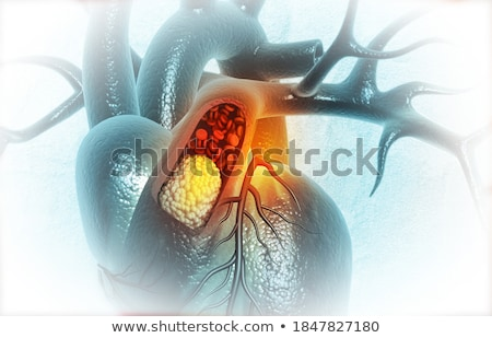 Atherosclerosis. Medicine. 3D Illustration. Stock photo © tashatuvango