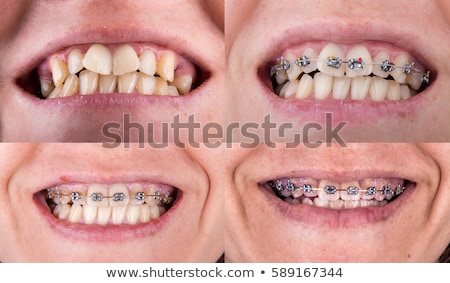 Beauty care. Part of woman face. Perfect smile before and after bleaching. Dental care and whitening Stock photo © serdechny