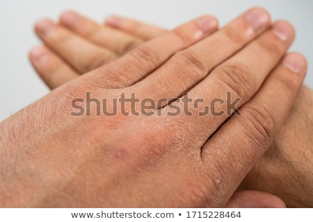 extreme skin exfoliation Stock photo © jayfish