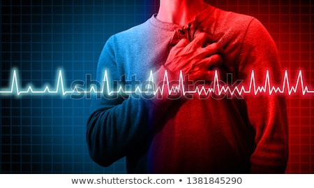 Arrhythmia. Medicine. 3D Illustration. Stock photo © tashatuvango