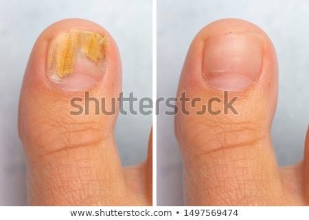 Teennagel ziekte lichaam gezondheid geneeskunde nagel Stockfoto © Hofmeester